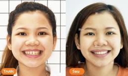 Niềng răng thưa - Quyết định đúng đắn của những nữ sinh tuổi đôi mươi