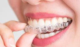 Niềng răng tháo lắp giá bao nhiêu và 5 lưu ý quan trọng bạn nên biết