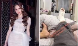 Hương Giang bị chấn thương khớp cổ chân, phải bó bột