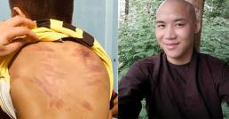 Đề nghị khởi tố gã cư sĩ biến thái có hành vi ấu dâm, bạo hành bé trai ở Bình Thuận