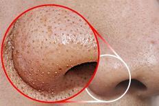 4 công thức giúp làm sạch da, ngăn ngừa mụn đầu đen