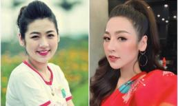 Luôn được ca ngợi nhờ vẻ đẹp tự nhiên, Á hậu Tú Anh dính nghi án phẫu thuật quá tay vì gương mặt khác lạ