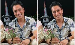 Sau gần 2 tháng phẫu thuật thẩm mỹ, Việt Anh gây thất vọng với gương mặt lạ nhưng kém sắc
