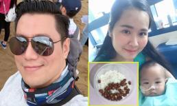 Sao Việt 30/8/2019: Việt Anh chụp cận mặt sau 'dao kéo'; Bữa cơm thanh đạm của ca sĩ Minh Hiền khi ở Sing chữa bệnh cho con