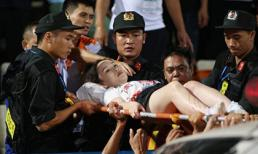 Pháo sáng trên sân Hàng Đẫy khiến nữ phóng viên bị bỏng nặng vào tận xương, phải mổ chân