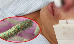Bệnh Whitmore - vi khuẩn 'ăn thịt người' thực sự nguy hiểm thế nào?