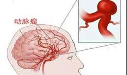 Được ví như 'bom nổ chậm' - phình động mạch não nguy hiểm đến mức nào?