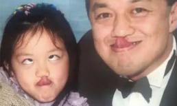 Lý Yên đăng ảnh hồi nhỏ chưa phẫu thuật dị tật môi bẩm sinh, gửi lời chúc mừng sinh nhật từ phương xa tới người cha vĩ đại Lý Á Bằng