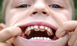 Cậu bé 8 tuổi có đến 4 hàng răng