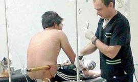 Người đàn ông may mắn sống sót dù bị ống nước sắt xuyên thủng bụng