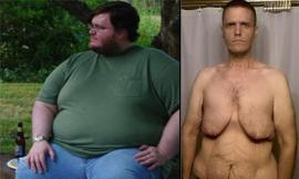 Chàng trai béo phì lộ da thừa 'kinh dị' sau khi giảm 160kg