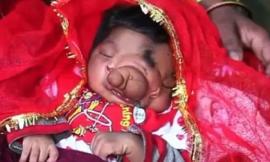 Bé gái vừa sinh ra đã có 'vòi voi' ngay trên mặt