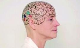 Giảng viên nữ tự cạo trọc đầu mình để dạy học
