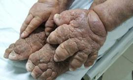 Những bức ảnh về chân và tay người dị dạng đáng sợ