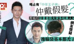 'Soái ca' Huỳnh Hiểu Minh bị hói, phải cậy nhờ đến công nghệ cấy tóc?