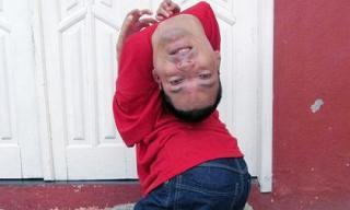 Người đàn ông mắc dị tật đầu gập ngược từ trước ra sau