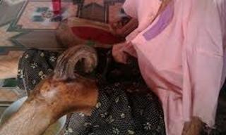 Kỳ lạ: Cụ bà gần trăm tuổi mọc sừng ở đầu gối