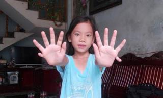 Kỳ lạ cô bé có 24 ngón tay, chân ở Quảng Nam