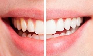 6 mẹo thiên nhiên giúp hàm răng trắng như ngọc