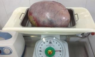 Thiếu nữ bị khối u buồng trứng gần 5kg