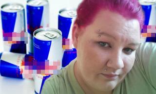 Người phụ nữ mất dần thị lực vì uống quá nhiều bò húc