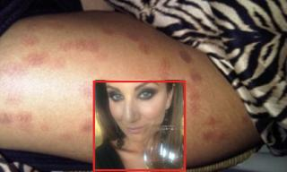 Những vết sẹo đáng sợ trên chân sau khi tẩy lông bằng tia laser