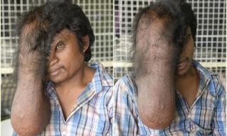 Người đàn ông có khối u trên mặt như vòi voi