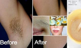 Loại bỏ ria mép ở phụ nữ đơn giản với thực phẩm tự nhiên