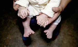 Em bé sinh ra bị dị tật với 15 ngón tay và 16 ngón chân