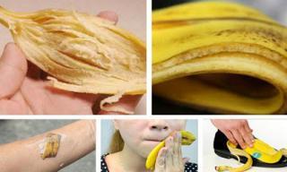 10 tác dụng cực hữu ích từ vỏ chuối mà rất ít người biết