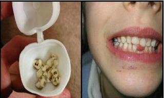 Bố mẹ đừng vội vứt răng sữa của con mà nên giữ lại vì lý do sau