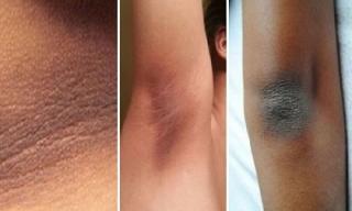 Loại bỏ vùng da sậm màu ở cổ, nách, khuỷu tay bằng cách vô cùng đơn giản
