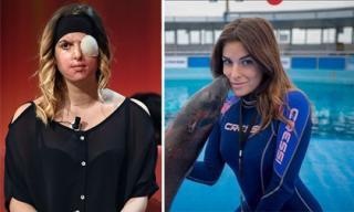 Sốc với  gương mặt bị hủy hoại của thí sinh Hoa hậu Ý do bạn trai cũ tạt axit
