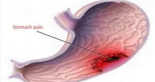 Không cần đến thuốc Tây, những công thức đơn giản sau cũng có thể 'hạ gục' cơn đau dạ dày