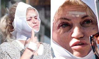 Nữ diễn viên Anh gây sốc với gương mặt băng bó sau khi 'sửa chữa' vì thẩm mỹ hỏng