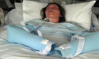 Cô gái suýt mất mạng và mất trí nhớ vì dùng băng vệ sinh sai cách