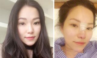 Sau ly hôn, vợ cũ Lâm Vinh Hải quyết định phẫu thuật thẩm mỹ để xinh đẹp hơn