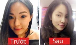 Vợ cũ của Lâm Vinh Hải khoe nhan sắc sau phẫu thuật thẩm mỹ