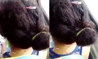 Mái tóc đầy côn trùng bò lúc nhúc khiến người xem bàng hoàng