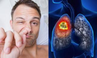 Ngoáy mũi có thể phát hiện sớm ung thư phổi?