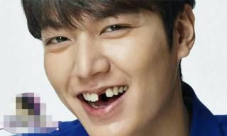 Bật cười trước loạt ảnh mỹ nam xứ Hàn trở thành 'oppa răng sún'