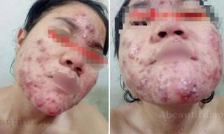 Dùng mỹ phẩm rẻ tiền, cô gái nhận cái kết đắng với gương mặt đầy mụn như 'cơm cháy'
