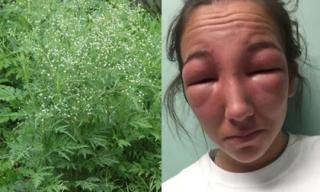 Loại cỏ dại mọc khắp nơi ở Việt Nam này có thể gây ra dị ứng khủng khiếp