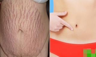 7 cách làm mờ vết rạn da sau sinh các chị em nên biết