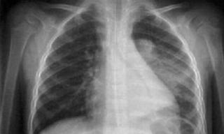 Nguyên nhân và cách điều trị tràn dịch màng phổi