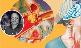 Dấu hiệu nhận biết bệnh tai biến mạch máu não và cách phòng tránh căn bệnh đã khiến 'Chí Phèo' Bùi Cường đột ngột qua đời