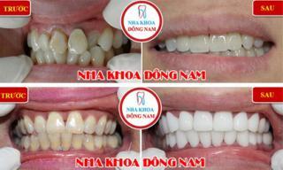 Bọc răng sứ không cần mài răng, có đúng sự thật?