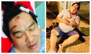 Nghệ sĩ Hoàng Mập bị tai nạn giao thông, thương tích khắp người