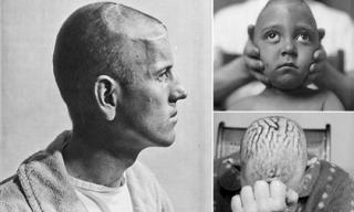 Hình ảnh gây ám ảnh về phẫu thuật não những năm 1900