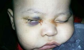 Xót thương em bé bị mù do bác sĩ mổ nhầm mắt